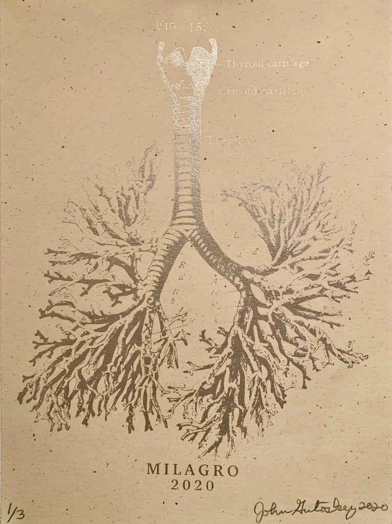 Anatomical Lung Tree Milagro Prints