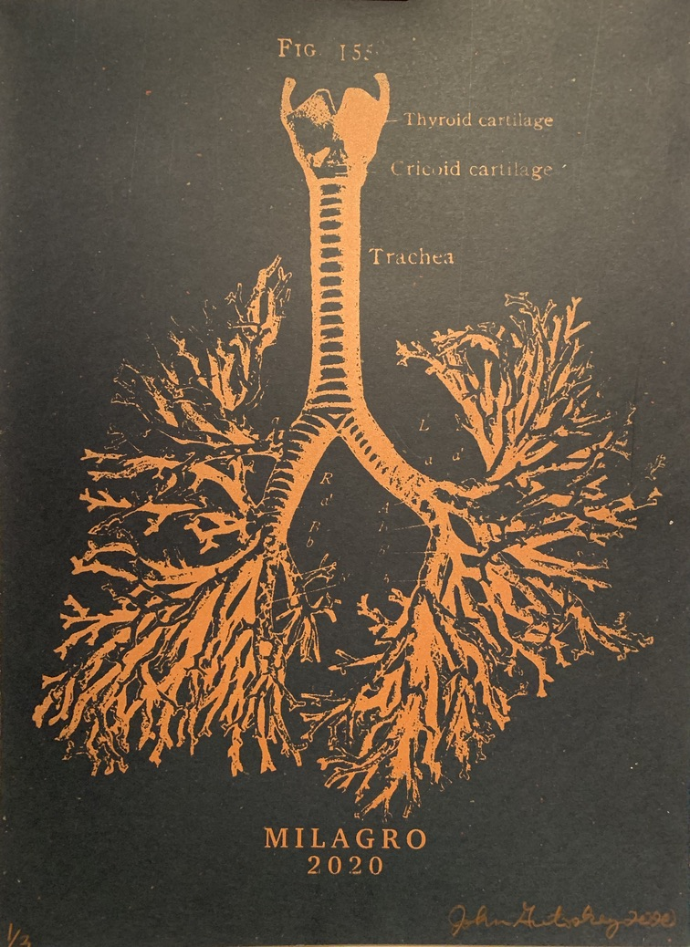 Anatomical Lung Tree Milagro Prints